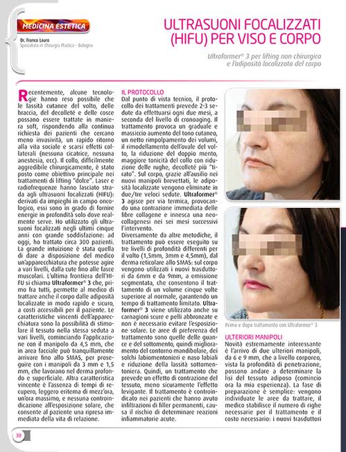 ULTRAFORMER On Italy Magazine